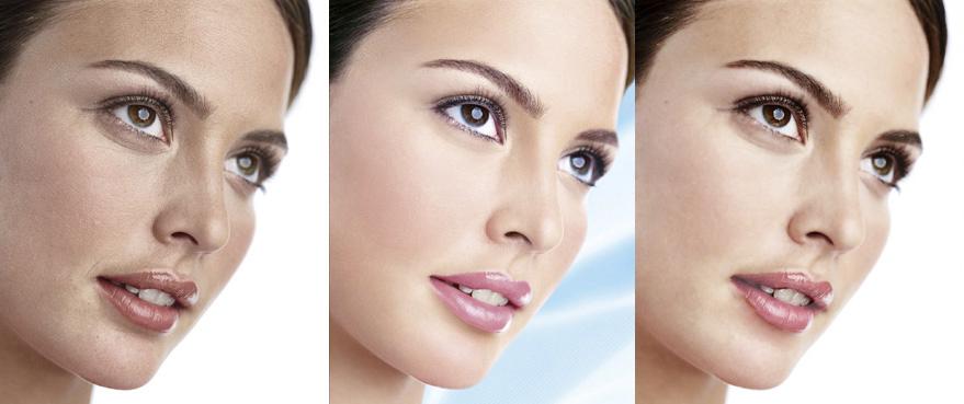 关于修皮肤 丑女变美女